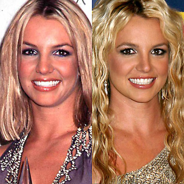25-Celebrities-Before-And-After-Plastic-Surgery-013