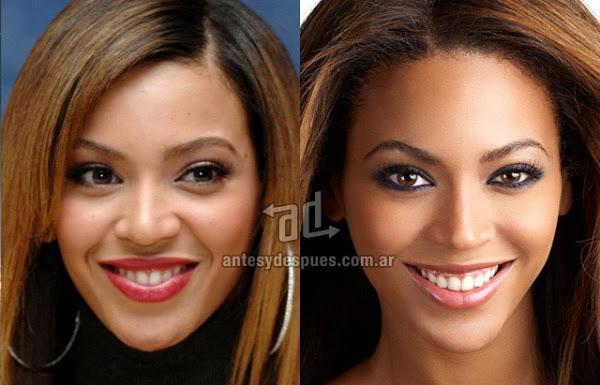Beyonce_nariz-nosejob_www.antesydespues.com.ar