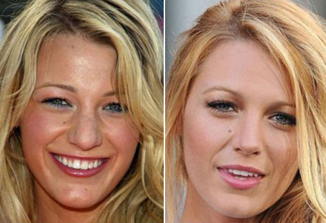 Blake-Lively-nose-job-plastic-surgery