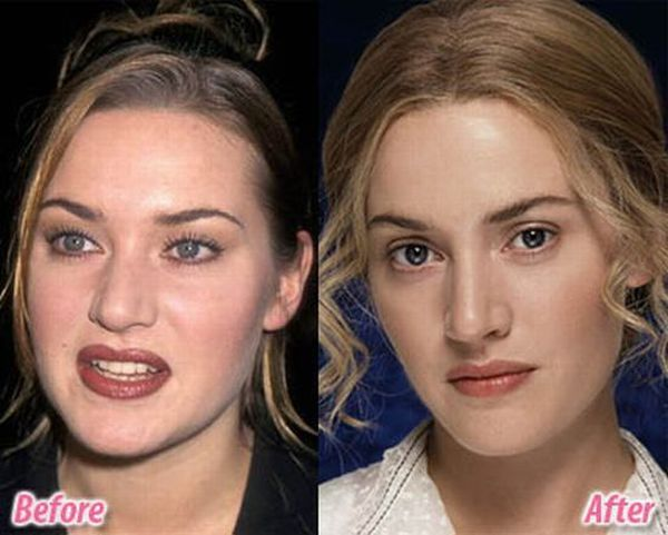 Celebrity-Plastic-Surgery-Before-After-46