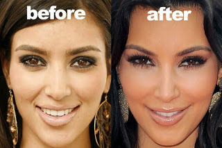 Kim Kardashian Plastic Surgery Before And After 05
