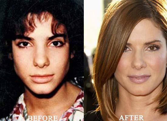 Sandra-Bullock-Plastic-Surgery