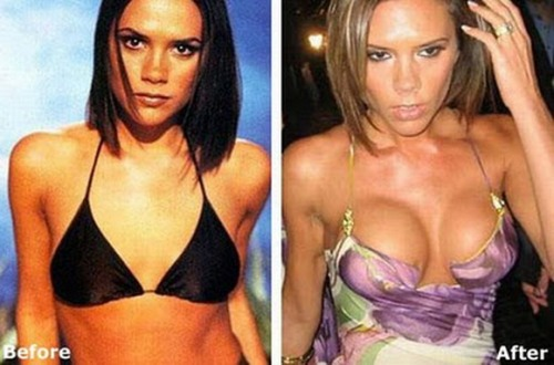 before-after-celebrities-actress-plastic-surgery-breast-implant-photos-41