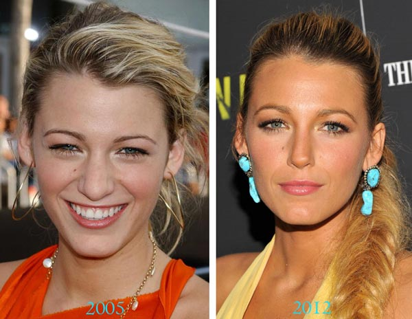 blake-lively-plastic-surgery-before-and-after