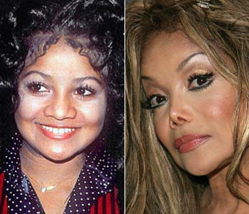 celebs-after-nose-plastic-surgery-35