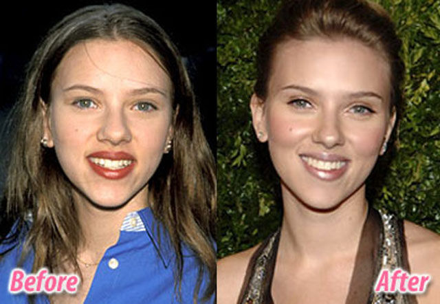 celebs_with_plastic_surgery_640_07