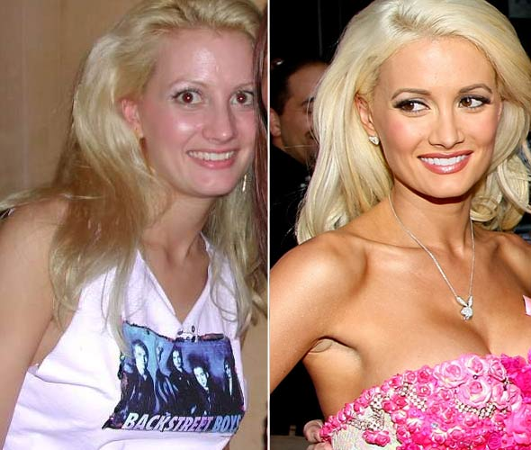 holly-madison-before-and-after