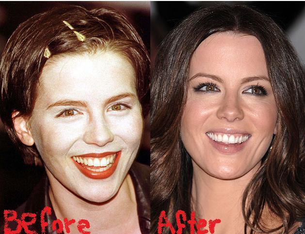 kate-beckinsale-plastic-surgery1