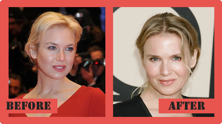 Renee zellweger before after