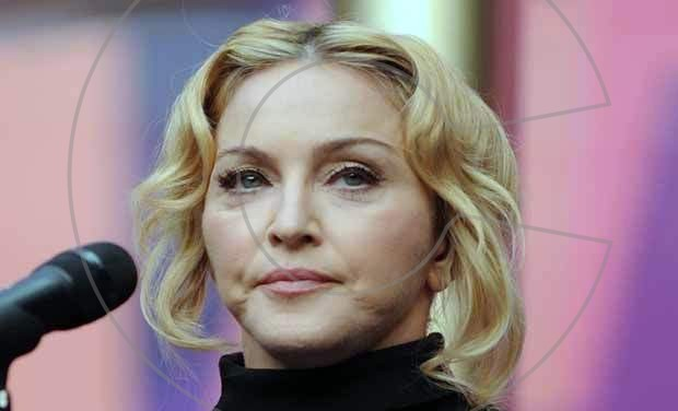 Madonna-photos-Madonna-plastic-surgery-Madonna-before-after-Madonna-cosmetic-surgery-celebrities-plastic-surgery2