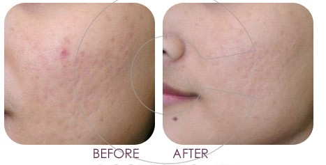 Derma Roller - Ance Scars